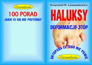 HALLUKSY, DEFORMACJE STÓP - 50STR.